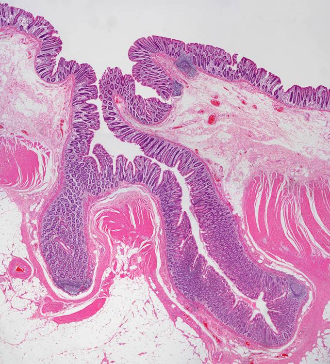 アメブロ 大腸 が ん